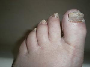 Лечение грибка на ногах и ногтях